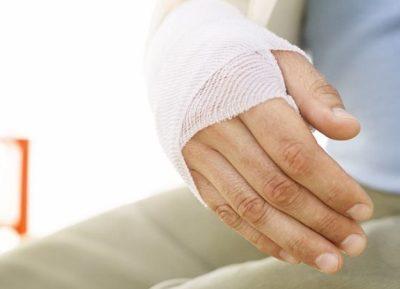 Как оплачивается больничный при травме на производстве